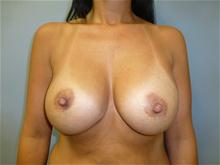 Breast Augmentation After Photo by Amy Bandy, DO, FACS; Newport Beach, CA - Case 27667