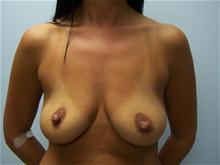 Breast Augmentation Before Photo by Amy Bandy, DO, FACS; Newport Beach, CA - Case 27667
