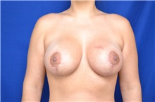 Breast Lift After Photo by Steven Carp, MD; Green, OH - Case 27190