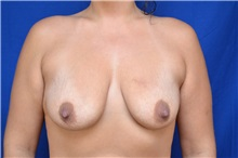 Breast Lift Before Photo by Steven Carp, MD; Green, OH - Case 27190