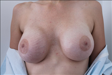 Breast Reconstruction After Photo by David Abramson, MD; Englewood, NJ - Case 25184