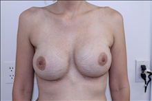 Breast Reconstruction Before Photo by David Abramson, MD; Englewood, NJ - Case 25184
