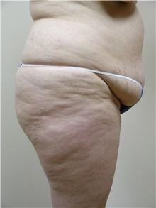 Tummy Tuck Before Photo by Michael Malczewski, MD; Hobart, IN - Case 20856