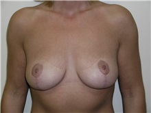 Breast Lift After Photo by Michael Malczewski, MD; Hobart, IN - Case 20896