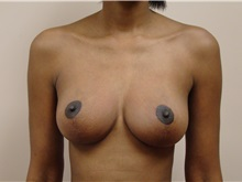 Breast Lift After Photo by Michael Malczewski, MD; Hobart, IN - Case 20897