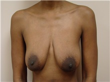 Breast Lift Before Photo by Michael Malczewski, MD; Hobart, IN - Case 20897