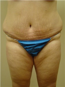 Tummy Tuck After Photo by Michael Malczewski, MD; Hobart, IN - Case 20899