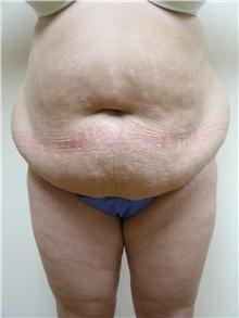 Tummy Tuck Before Photo by Michael Malczewski, MD; Hobart, IN - Case 20899