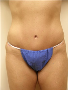 Tummy Tuck After Photo by Michael Malczewski, MD; Hobart, IN - Case 20901