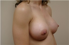 Breast Augmentation After Photo by Michael Malczewski, MD; Hobart, IN - Case 20988