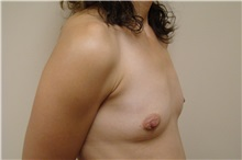 Breast Augmentation Before Photo by Michael Malczewski, MD; Hobart, IN - Case 20988