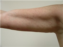 Arm Lift After Photo by Michael Malczewski, MD; Hobart, IN - Case 20992