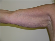 Arm Lift Before Photo by Michael Malczewski, MD; Hobart, IN - Case 20992