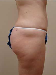 Tummy Tuck After Photo by Michael Malczewski, MD; Hobart, IN - Case 20994