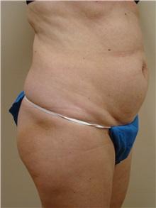 Tummy Tuck Before Photo by Michael Malczewski, MD; Hobart, IN - Case 20994