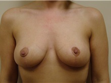 Breast Lift After Photo by Michael Malczewski, MD; Hobart, IN - Case 21002