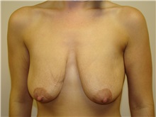 Breast Lift Before Photo by Michael Malczewski, MD; Hobart, IN - Case 21002
