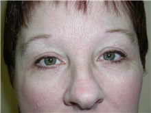 Eyelid Surgery After Photo by Michael Malczewski, MD; Hobart, IN - Case 21004