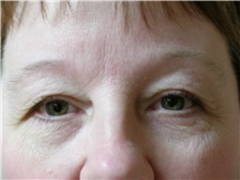 Eyelid Surgery Before Photo by Michael Malczewski, MD; Hobart, IN - Case 21004