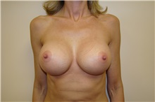 Breast Augmentation After Photo by Michael Malczewski, MD; Hobart, IN - Case 23297