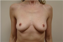 Breast Augmentation Before Photo by Michael Malczewski, MD; Hobart, IN - Case 23297