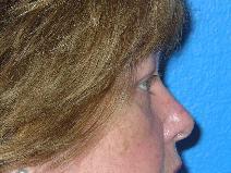 Eyelid Surgery After Photo by Jon Paul Trevisani, MD, FACS; Maitland, FL - Case 8993