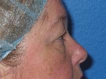 Eyelid Surgery Before Photo by Jon Paul Trevisani, MD, FACS; Maitland, FL - Case 8993
