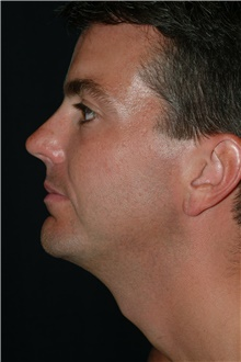 Chin Augmentation After Photo by Brian Hass, MD; Palm Beach Gardens, FL - Case 43000