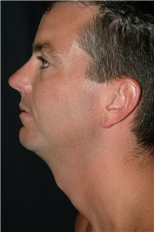Chin Augmentation Before Photo by Brian Hass, MD; Palm Beach Gardens, FL - Case 43000