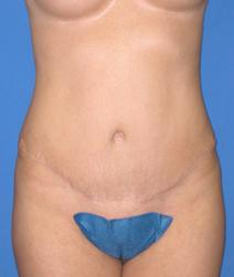 Tummy Tuck After Photo by Melek Kayser, MD; Saint Clair Shores, MI - Case 4515