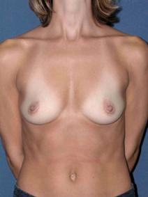 Breast Augmentation Before Photo by Melek Kayser, MD; Saint Clair Shores, MI - Case 4553