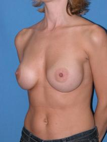 Breast Augmentation After Photo by Melek Kayser, MD; Saint Clair Shores, MI - Case 4553