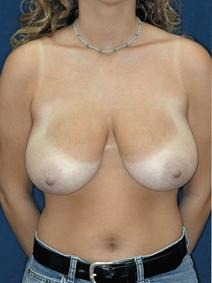 Breast Reduction Before Photo by Melek Kayser, MD; Saint Clair Shores, MI - Case 4682