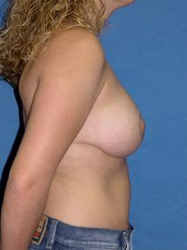 Breast Reduction After Photo by Melek Kayser, MD; Saint Clair Shores, MI - Case 4682