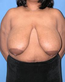 Breast Reduction Before Photo by Melek Kayser, MD; Saint Clair Shores, MI - Case 4696
