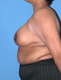 Breast Reduction After Photo by Melek Kayser, MD; Saint Clair Shores, MI - Case 4696