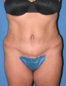 Tummy Tuck After Photo by Melek Kayser, MD; Saint Clair Shores, MI - Case 4734