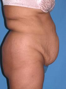 Tummy Tuck Before Photo by Melek Kayser, MD; Saint Clair Shores, MI - Case 4734