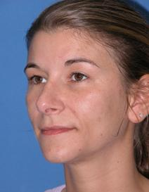 Rhinoplasty After Photo by Melek Kayser, MD; Saint Clair Shores, MI - Case 4744