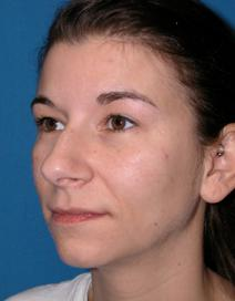 Rhinoplasty Before Photo by Melek Kayser, MD; Saint Clair Shores, MI - Case 4744