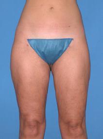 Liposuction Picture