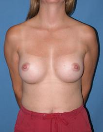 Breast Augmentation After Photo by Melek Kayser, MD; Saint Clair Shores, MI - Case 6590