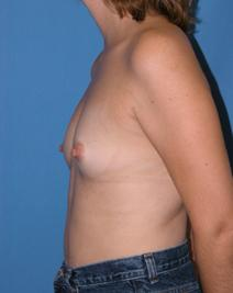 Breast Augmentation Before Photo by Melek Kayser, MD; Saint Clair Shores, MI - Case 6590