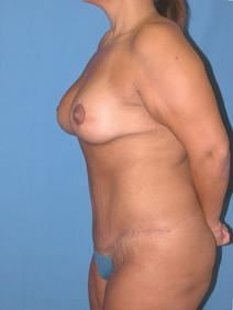 Tummy Tuck After Photo by Melek Kayser, MD; Saint Clair Shores, MI - Case 6595