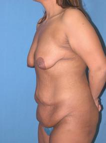 Tummy Tuck Before Photo by Melek Kayser, MD; Saint Clair Shores, MI - Case 6595