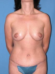 Tummy Tuck After Photo by Melek Kayser, MD; Saint Clair Shores, MI - Case 6596