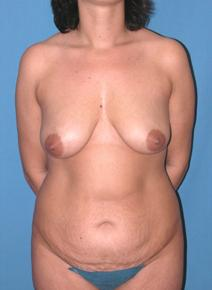 Tummy Tuck Before Photo by Melek Kayser, MD; Saint Clair Shores, MI - Case 6596