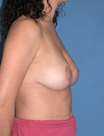 Breast Reduction After Photo by Melek Kayser, MD; Saint Clair Shores, MI - Case 6597