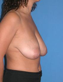 Breast Reduction Before Photo by Melek Kayser, MD; Saint Clair Shores, MI - Case 6597
