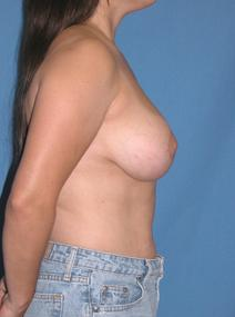 Breast Reduction After Photo by Melek Kayser, MD; Saint Clair Shores, MI - Case 6601